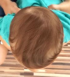 glava dojenčka po korekciji zaležane glave