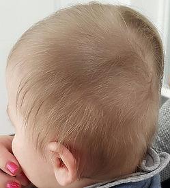 primer plagiocefalije v kombinaciji z brahiocefalijo