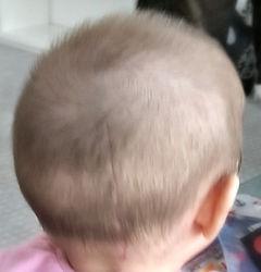 glava dojenčka s strukturalno kraniosinestozo