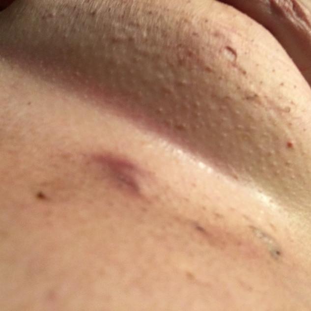 Under Breast