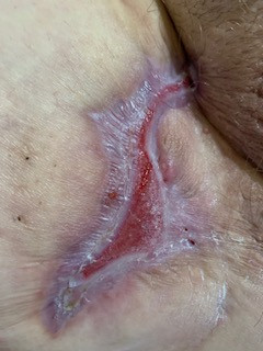 Right Inner Thigh Nearly Healed Wide Excision