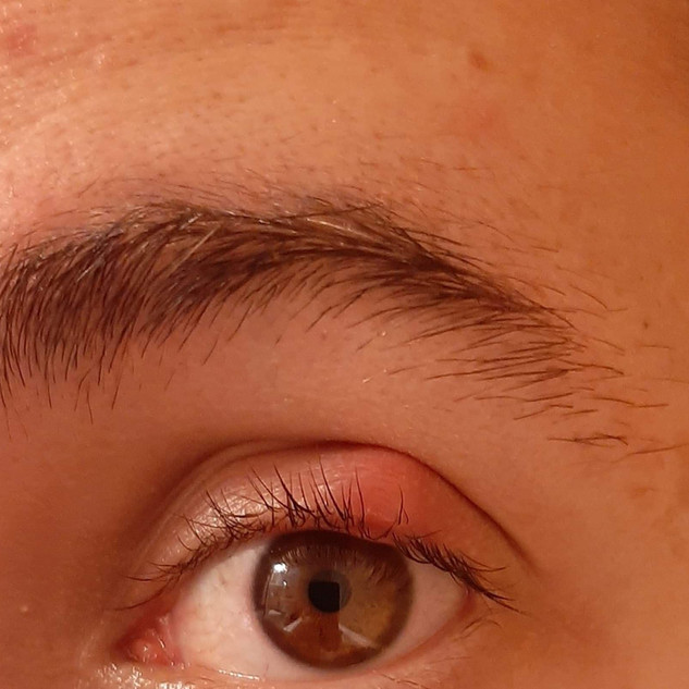 Eyelid/Eyelash