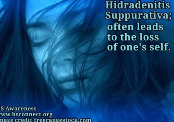 HS inspiration awareness freerangestock_