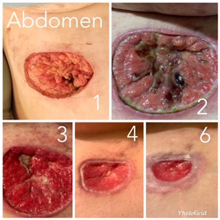 Abdomen Healing from Wide Excision