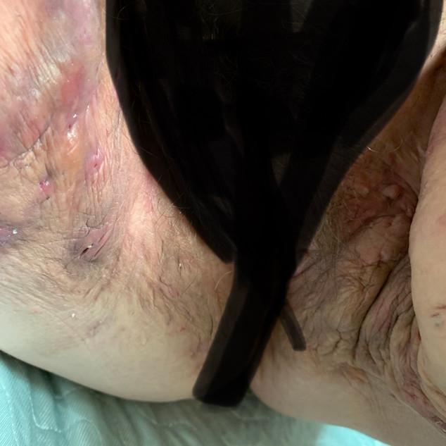 Inner Thighs/Groin