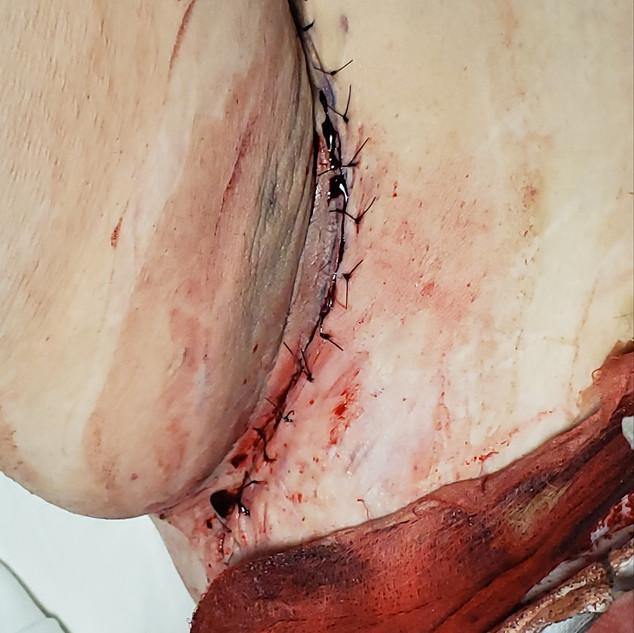 Armpit Surgery