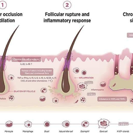 What is HS: Inflammatory/Follicular Occlusion