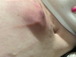 Upper Abdomen/Under Breast