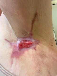 Left Armpit Healing