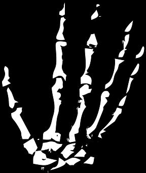 Black Lich skeleton hand