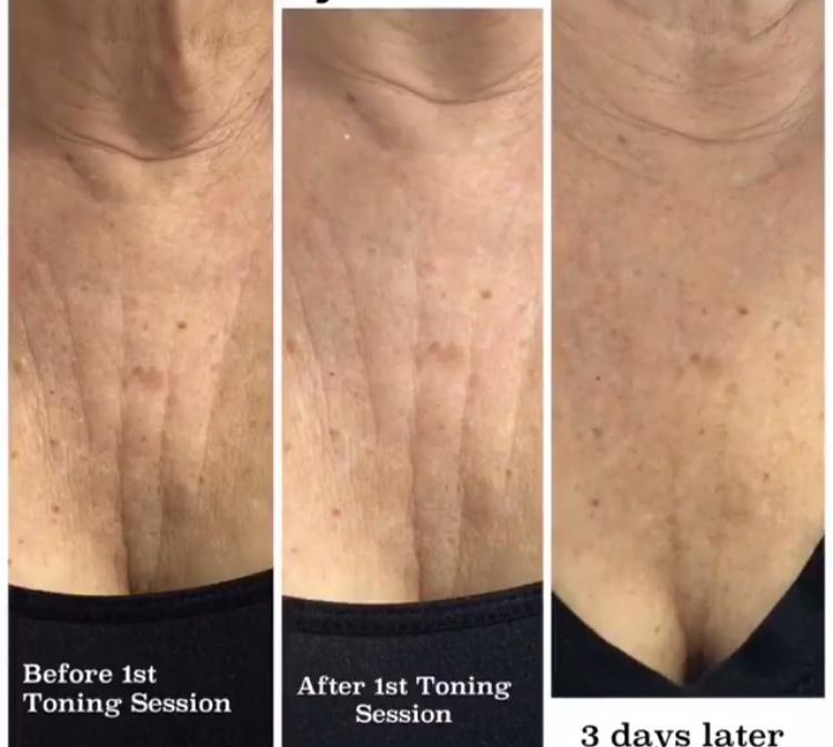 decolletage cryo results