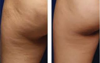 cellulite results