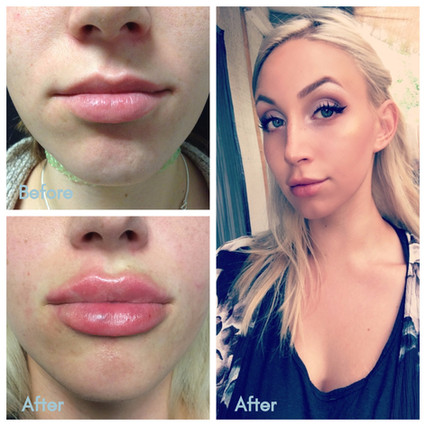 You aesthetics: Lip Fillers