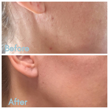 YOU aesthetics: RF Microneedling with PRP