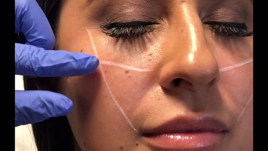 YOU aesthetics: Nurse Nicki shows How Cheek Fillers are Done
