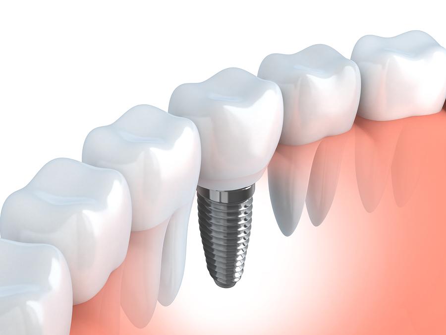 Implantologie_Dr_Weigel_Aachen