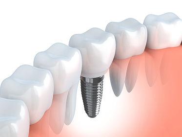 Zahnimplantate-aachen