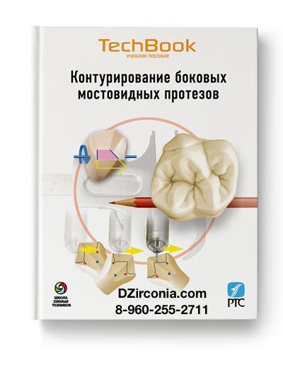 Контурирование боковых мостовидных протезов. Книга для зубных техников и стоматологов. DZirconia.com 8-960-255-2711 John C. Ness PTC 1