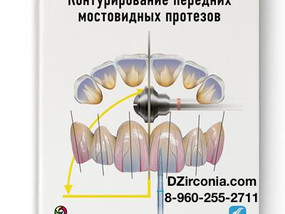 Контурирование передних мостовидных протезов DZirconia.com 8-960-255-2711