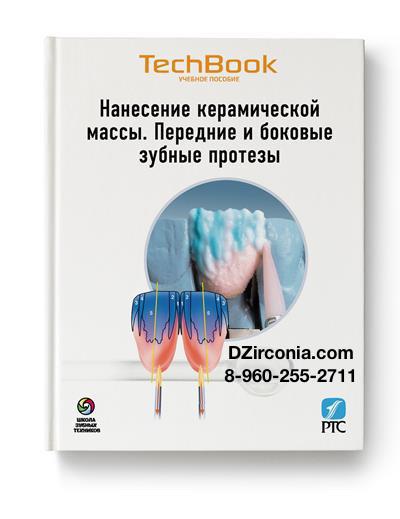 Нанесение Керамической Массы. Передние и боковые реставрации.  DZirconia.com 8-960-255-2711