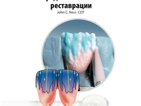 Нанесение Керамической Массы. Передние и боковые реставрации.