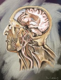 Artery head