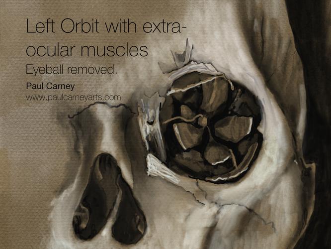 Left orbit with eyeball removed