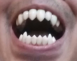 Full Venom Teeth Fangs