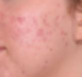 Kleresca Akne 6 Wochen nach Behandlung