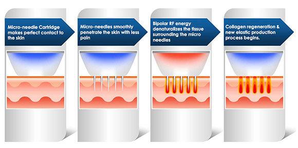 Radiofrequenz-Microneedling Behandlung Narben