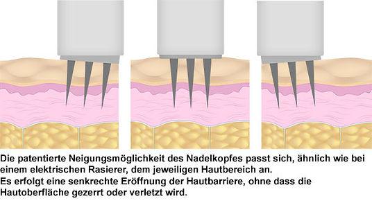 microneedling-patentkopf1.jpg