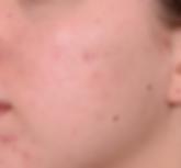 Kleresca Akne 57 Wochen nach Behandlung