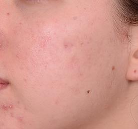 Kleresca Akne 33 Wochen nach Behandlung
