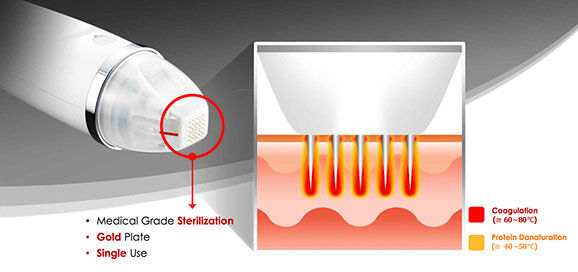 Radiofrequenz-Microneedling Behandlung Gerät