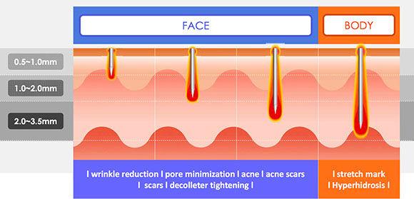 Radiofrequenz-Microneedling Gesicht Körper Narben