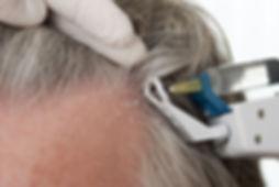 Mesotherapie Mesohair Anti-Haarausfall Behandlung