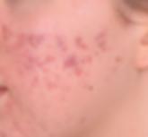 Kleresca Akne vor Behandlung