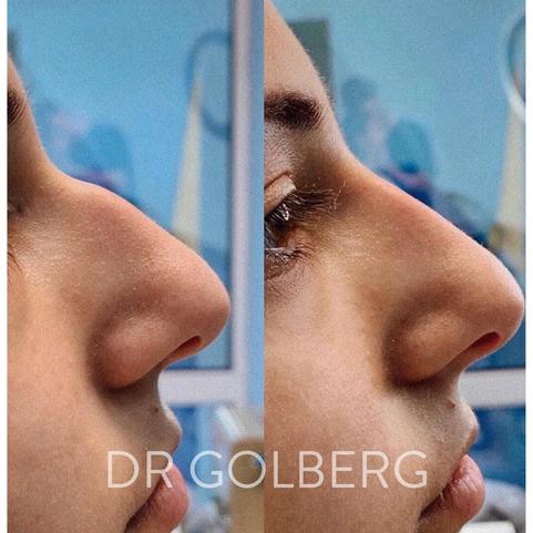 non surgical nose correction1.png