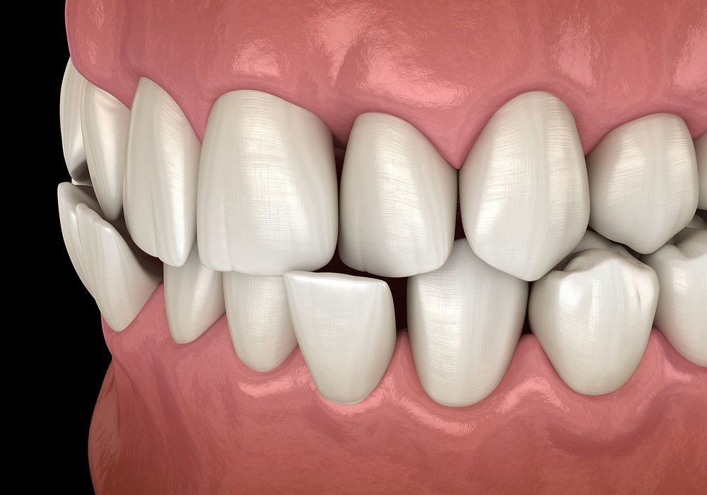 What causes a crossbite?