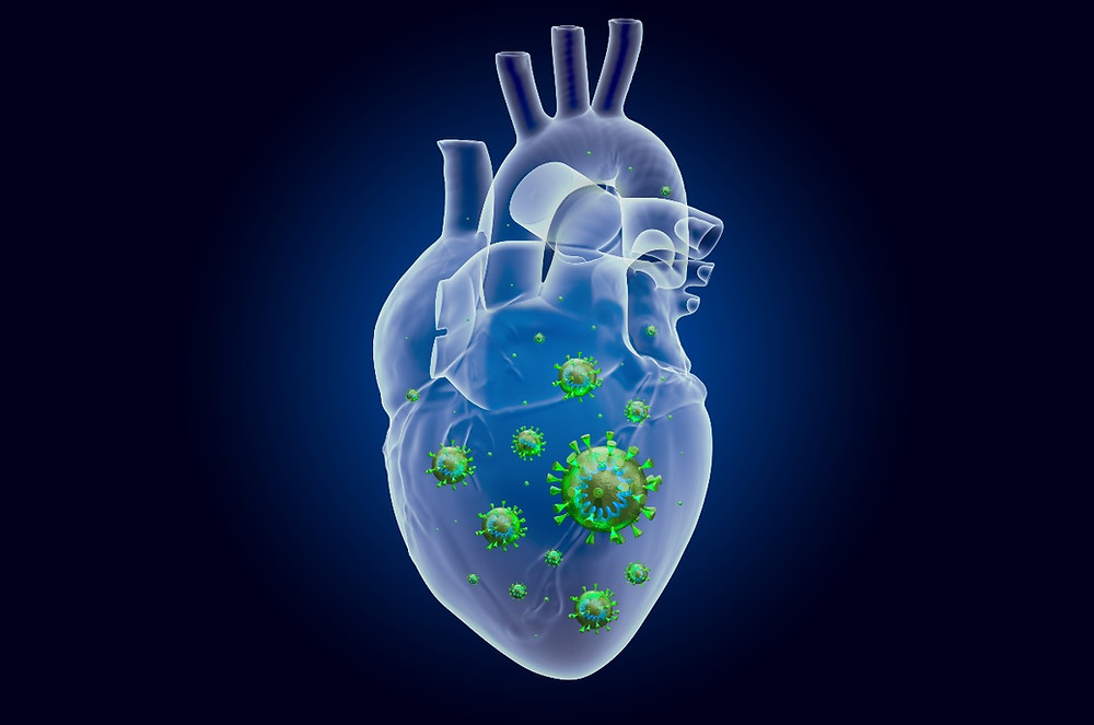 Intriguing Links Between Viral Infections, Heart Attacks, and Cardiometabolic Syndrome