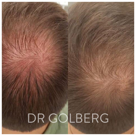 hair restoration 4.png