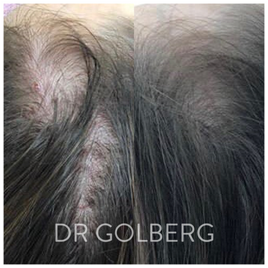 hair restoration 2.png