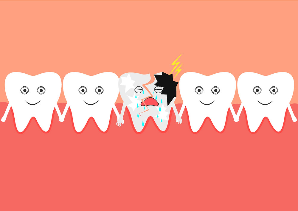 How to Handle a Cracked Tooth