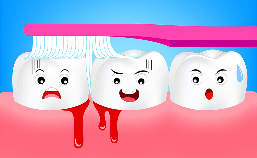 Bleeding Gums in Children: Symptoms, Causes, and Treatments