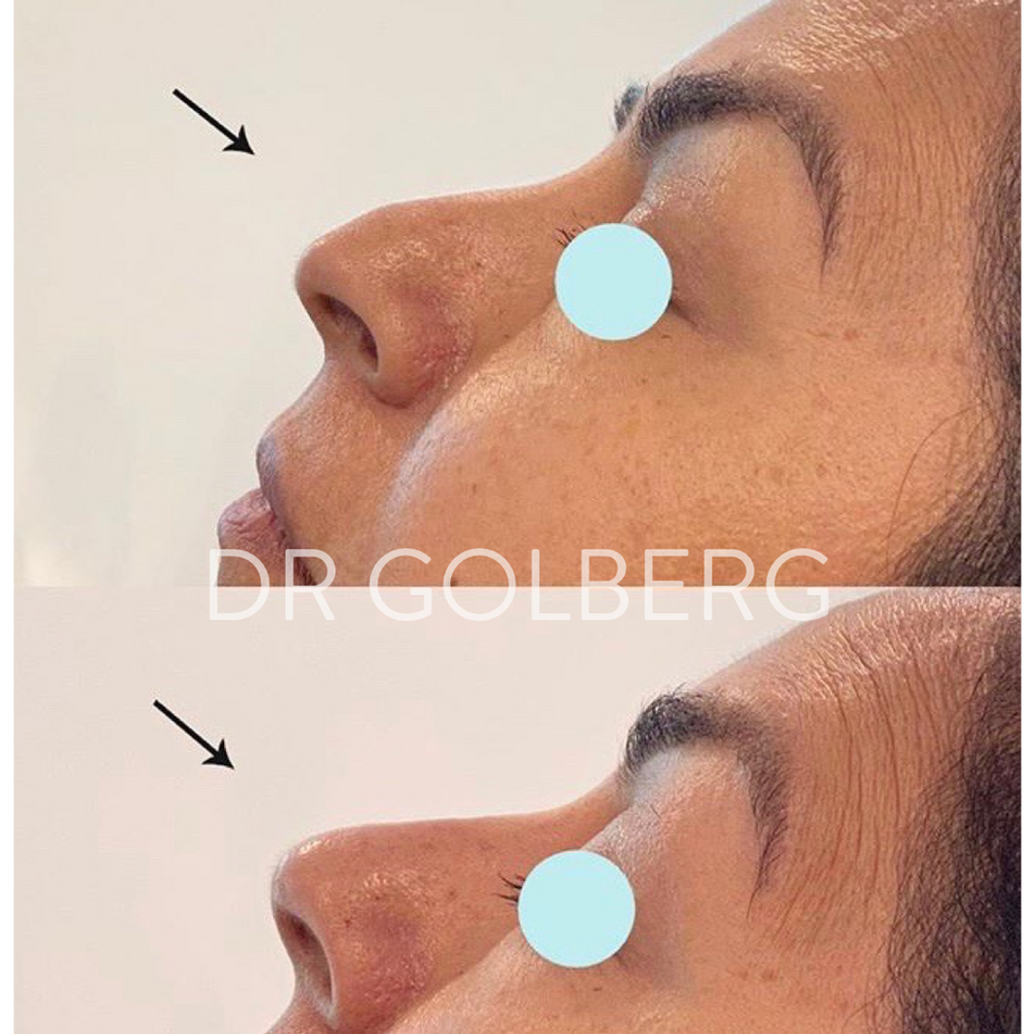 non surgical nose correction3.png