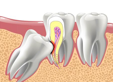 How We Treat Impacted Teeth