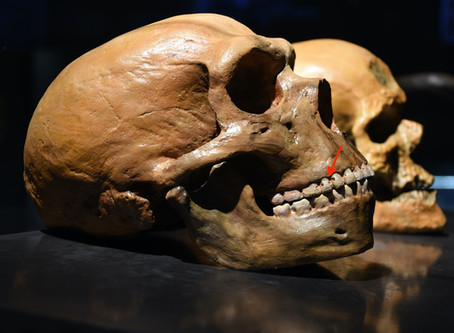 Incredible Ways That Ancient People Treated Cavities