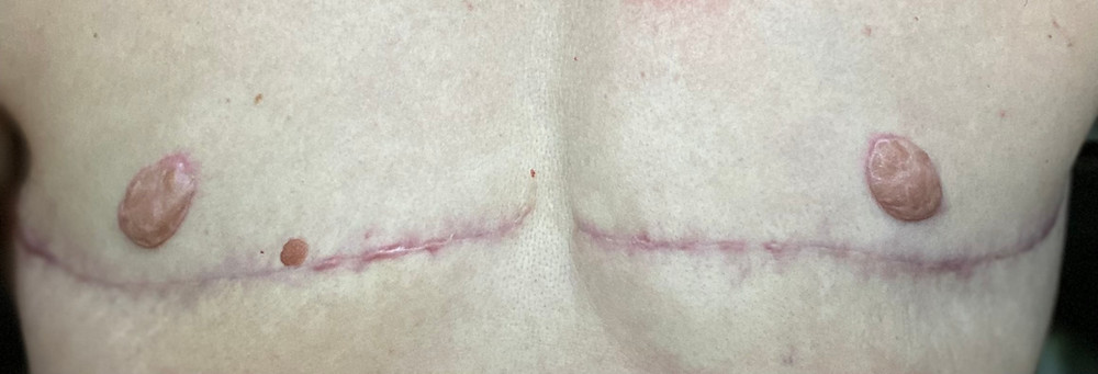 a close up picture of the author's gender affirming chest surgery scar and bespoke nipples; the scar is a thin pink line and the nipples are a similar color
