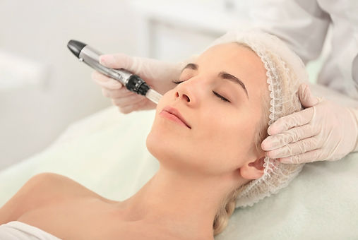 Micro-needling skin rejuvenation sarasot
