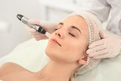 Micro-needling skin rejuvenation sarasot